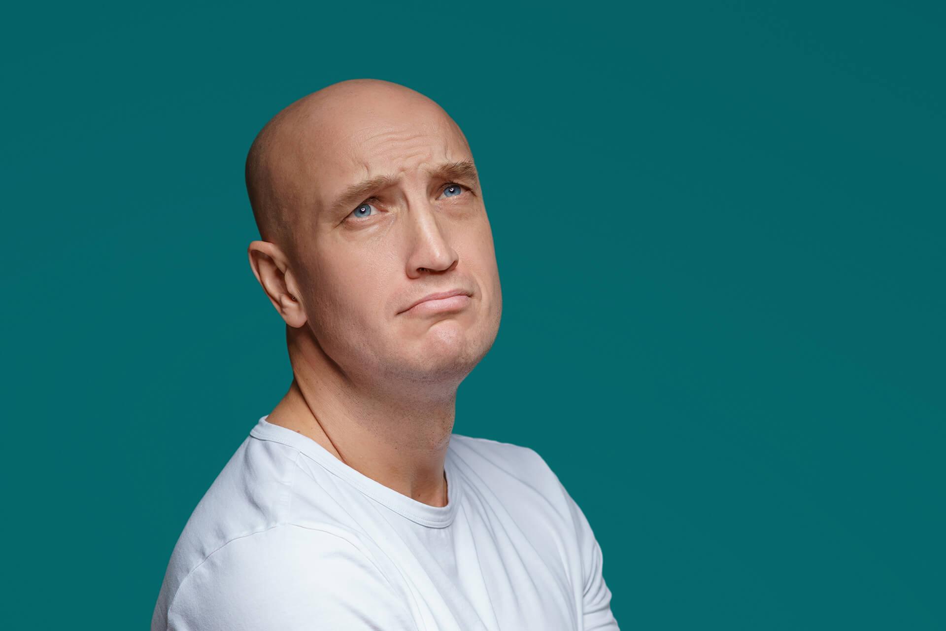 ¿Cómo sé si soy un candidato para un trasplante de pelo?